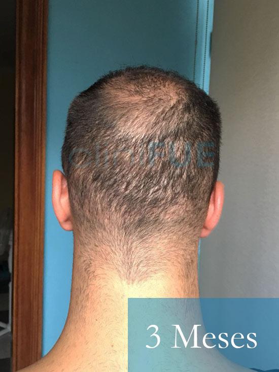 Christian implante capilar Turquia 6 meses 6