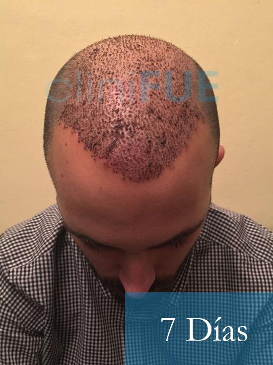 Antonio 39 años Murcia trasplante capilar turquia 7 dias 2