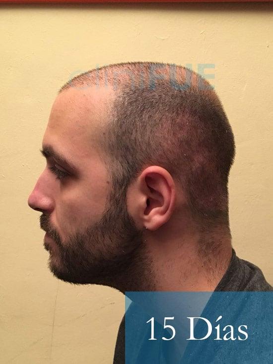 Christian implante capilar Turquia 15 dias