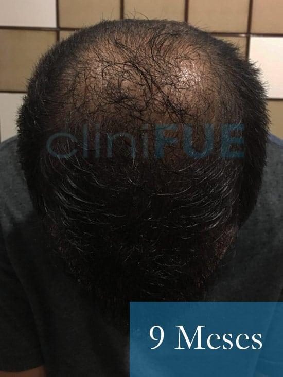 Christian implante capilar Turquia 9 meses 3