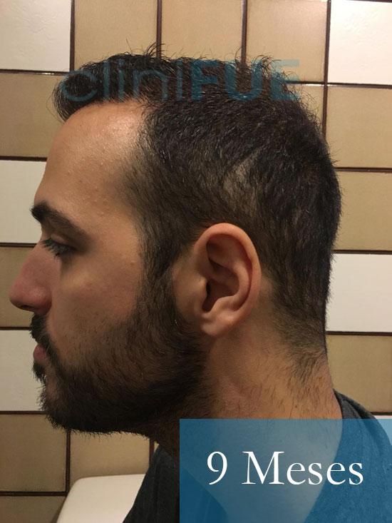 Christian implante capilar Turquia 9 meses 5