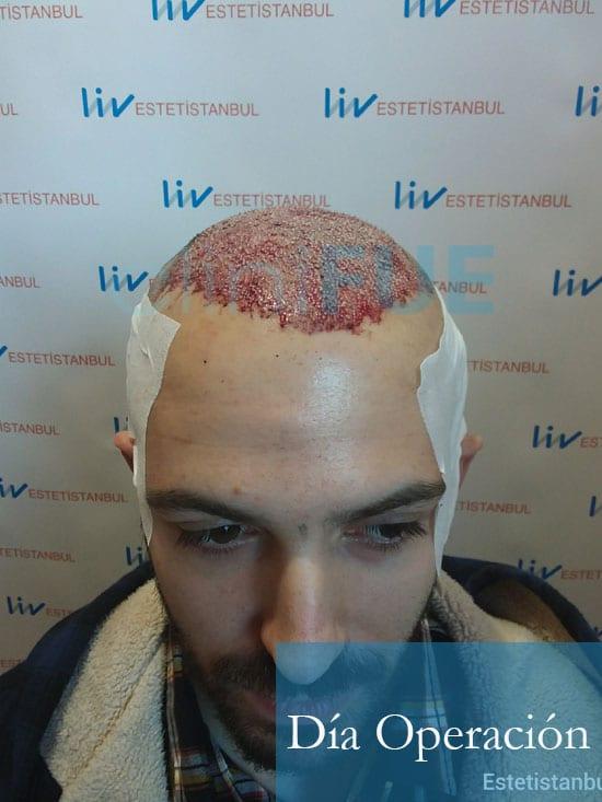 Christian implante capilar Turquia Dia Operacion1