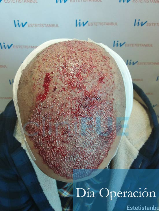 Christian implante capilar Turquia Dia Operacion 2