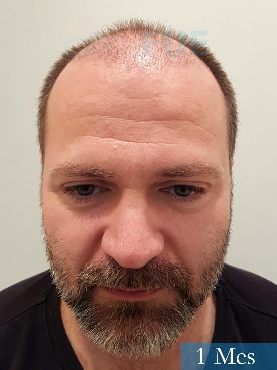 Daniel 43 años Guizpuzcoatrasplante capilar turquia dia operacion 1 mes