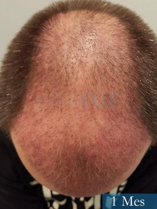 Daniel 43 años Guizpuzcoatrasplante capilar turquia dia operacion 1 mes 3