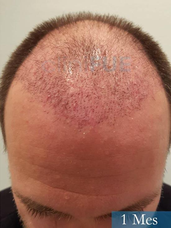 Daniel 43 años Guizpuzcoatrasplante capilar turquia dia operacion 1 mes 2