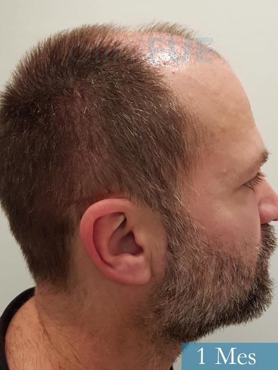 Daniel 43 años Guizpuzcoatrasplante capilar turquia dia operacion 1 mes 4