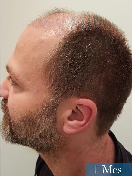 Daniel 43 años Guizpuzcoatrasplante capilar turquia dia operacion 1 mes 5