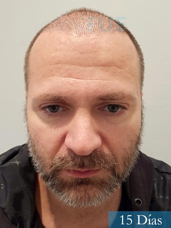 Daniel 43 años Guizpuzcoatrasplante capilar turquia dia operacion 15 dias