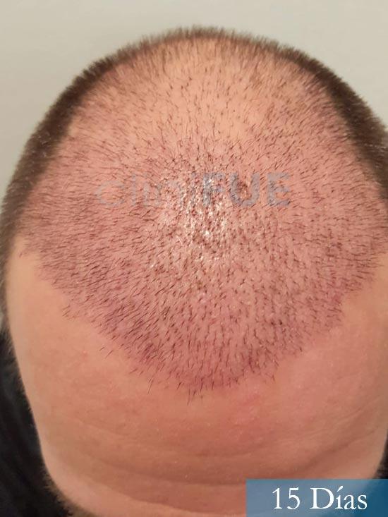 Daniel 43 años Guizpuzcoatrasplante capilar turquia dia operacion 15 dias 2