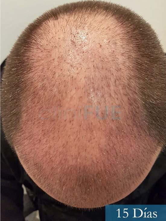 Daniel 43 años Guizpuzcoatrasplante capilar turquia dia operacion 15 dias 3
