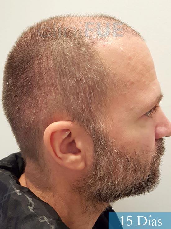 Daniel 43 años Guizpuzcoatrasplante capilar turquia dia operacion 15 dias 4