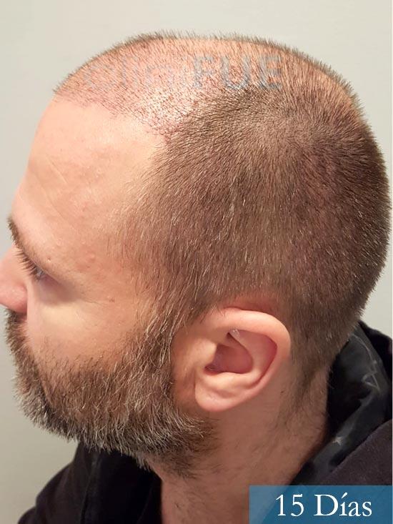 Daniel 43 años Guizpuzcoatrasplante capilar turquia dia operacion 15 dias 5
