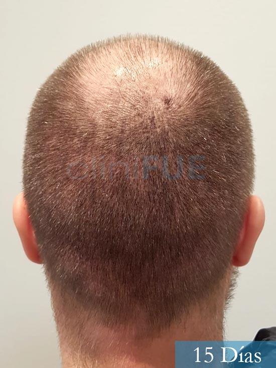 Daniel 43 años Guizpuzcoatrasplante capilar turquia dia operacion 15 dias 6
