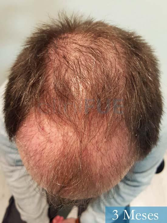 Daniel 43 años Guizpuzcoatrasplante capilar turquia dia operacion 3 meses 3