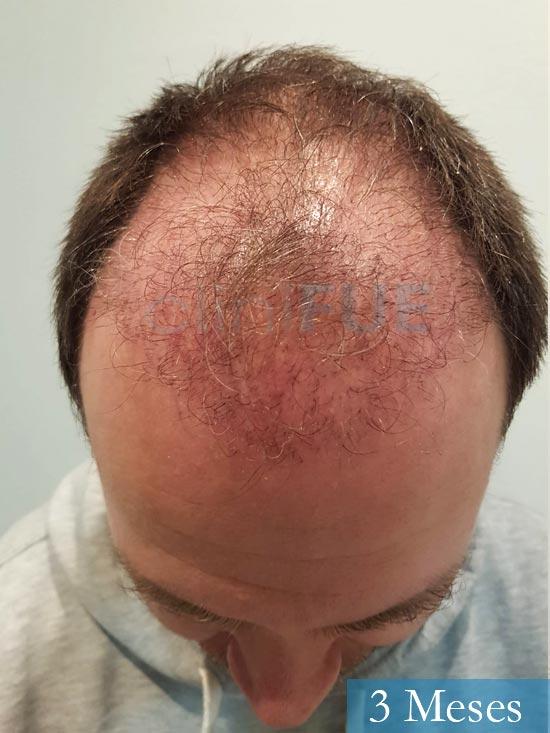 Daniel 43 años Guizpuzcoatrasplante capilar turquia dia operacion 3 meses 2
