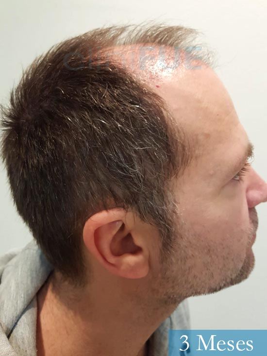 Daniel 43 años Guizpuzcoatrasplante capilar turquia dia operacion 3 meses 4