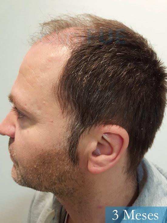 Daniel 43 años Guizpuzcoatrasplante capilar turquia dia operacion 3 meses 5