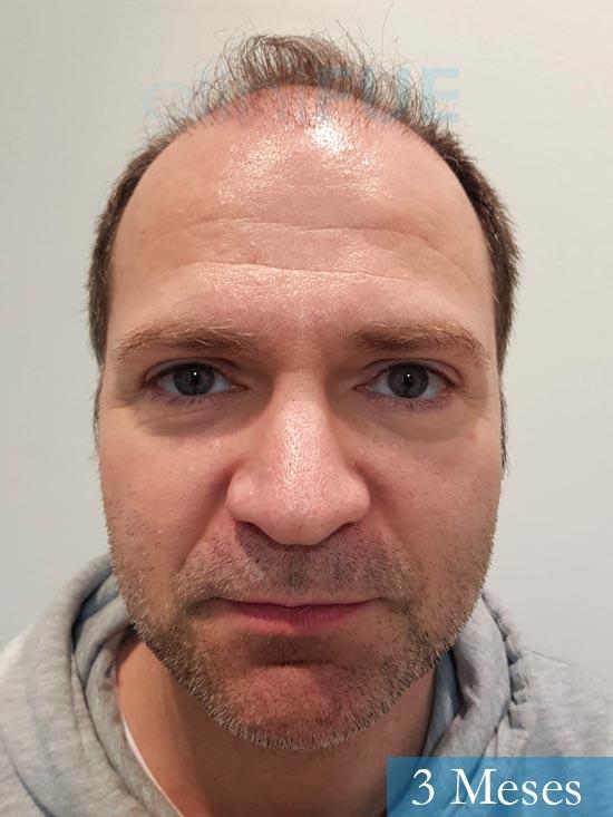 Daniel 43 años Guizpuzcoatrasplante capilar turquia dia operacion 3 meses