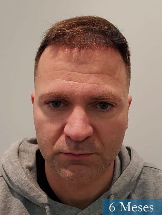 Daniel 43 años Guizpuzcoatrasplante capilar turquia dia operacion 6 meses