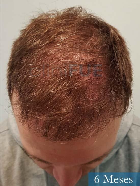 Daniel 43 años Guizpuzcoatrasplante capilar turquia dia operacion 6 meses 2