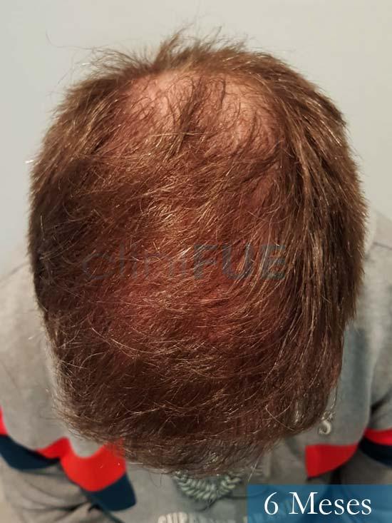 Daniel 43 años Guizpuzcoatrasplante capilar turquia dia operacion 6 meses 3