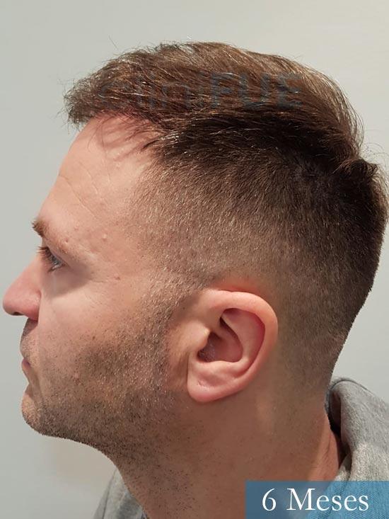 Daniel 43 años Guizpuzcoatrasplante capilar turquia dia operacion 6 meses 5