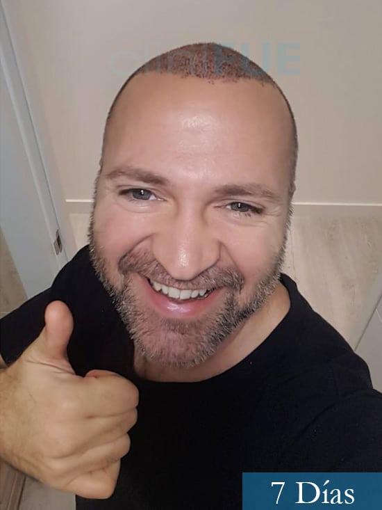 Daniel 43 años Guizpuzcoatrasplante capilar turquia dia operacion 7 dias