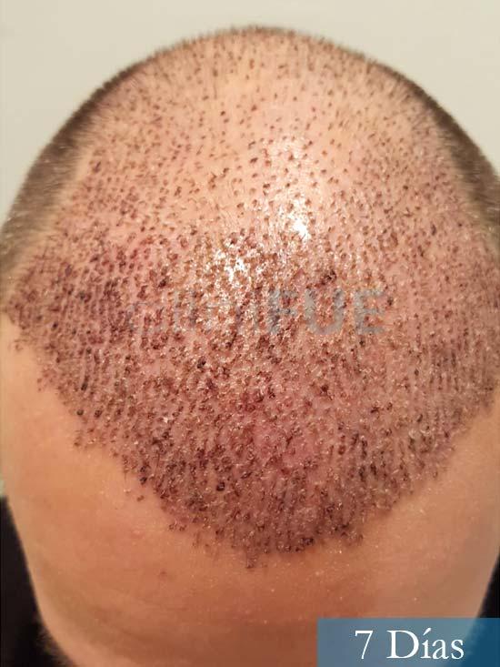 Daniel 43 años Guizpuzcoatrasplante capilar turquia dia operacion 7 dias 2
