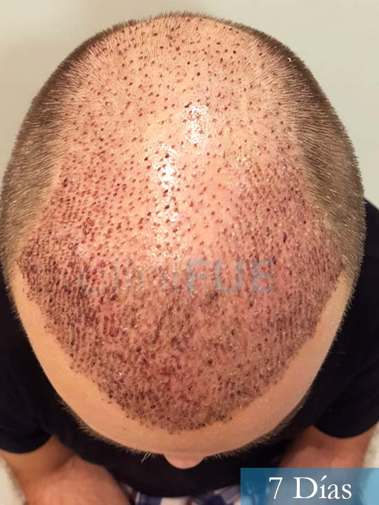 Daniel 43 años Guizpuzcoatrasplante capilar turquia dia operacion 7 dias 3