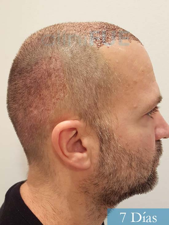 Daniel 43 años Guizpuzcoatrasplante capilar turquia dia operacion 7 dias 4