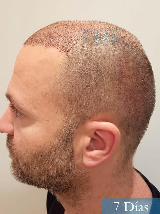 Daniel 43 años Guizpuzcoatrasplante capilar turquia dia operacion 7 dias 5