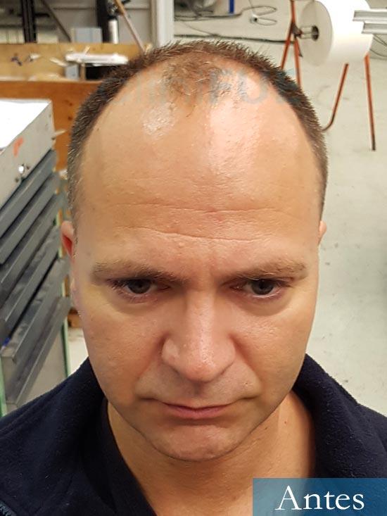 Daniel 43 años Guizpuzcoatrasplante capilar turquia Antes