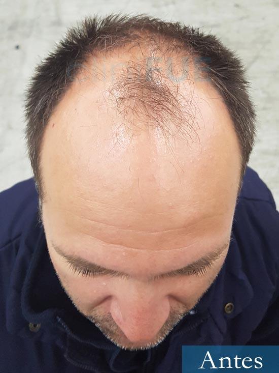 Daniel 43 años Guizpuzcoatrasplante capilar turquia Antes 2