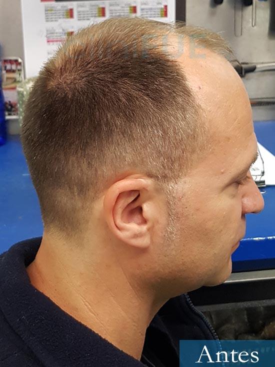 Daniel 43 años Guizpuzcoatrasplante capilar turquia Antes 4