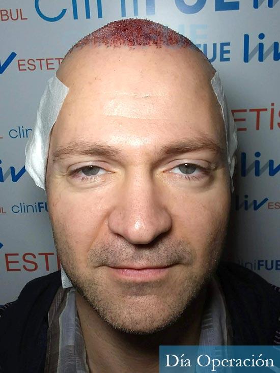 Daniel 43 años Guizpuzcoatrasplante capilar turquia dia operacion 1