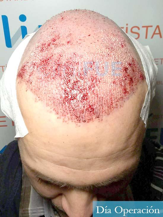 Daniel 43 años Guizpuzcoatrasplante capilar turquia dia operacion dia operacion 4