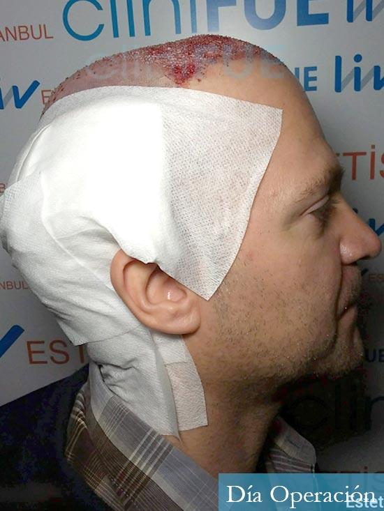 Daniel 43 años Guizpuzcoatrasplante capilar turquia dia operacion dia operacion 5