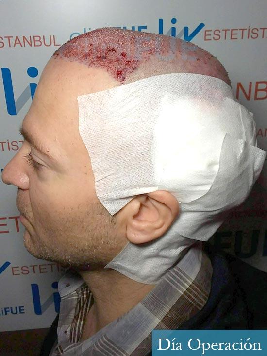 Daniel 43 años Guizpuzcoatrasplante capilar turquia dia operacion dia operacion 6