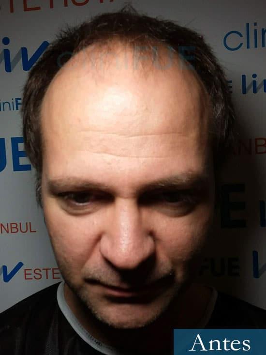Daniel 43 años Guizpuzcoatrasplante capilar turquia Antes dia operacion