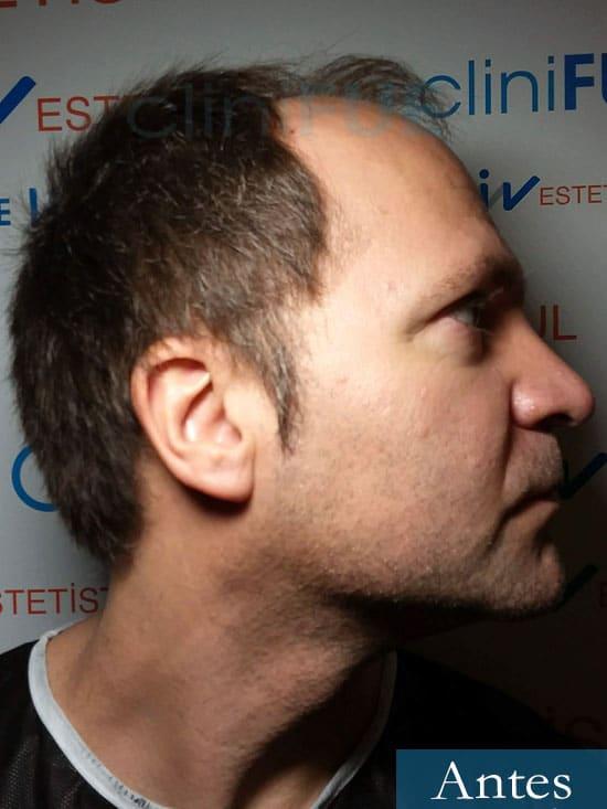 Daniel 43 años Guizpuzcoatrasplante capilar turquia Antes dia operacion 2