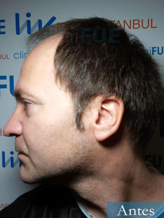 Daniel 43 años Guizpuzcoatrasplante capilar turquia Antes dia operacion 3
