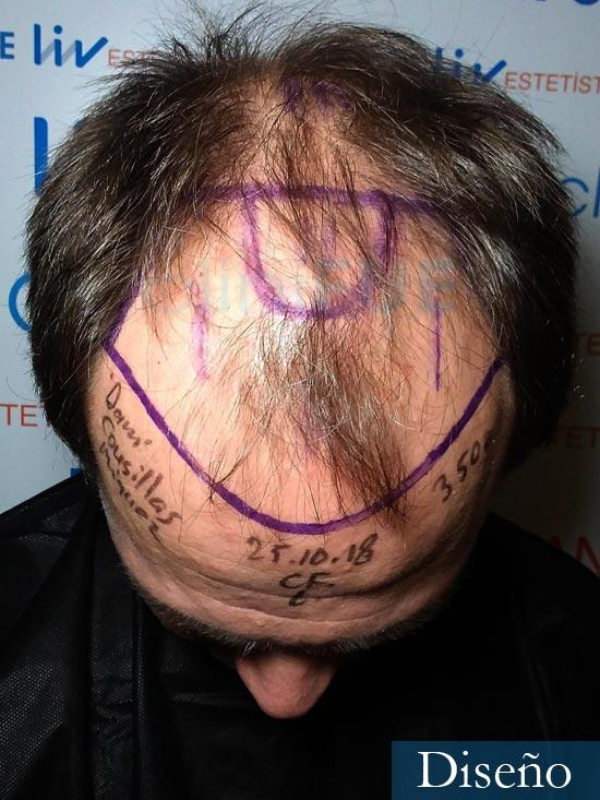 Daniel 43 años Guizpuzcoatrasplante capilar turquia dia operacion dia operacion diseno 2
