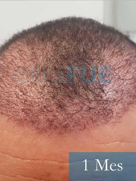 Fran 34 años Murcia trasplante capilar turquia 1 mes despues de la segunda operacion