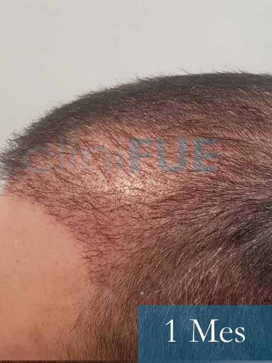Fran 34 años Murcia trasplante capilar turquia 1 mes despues de la segunda operacion 4
