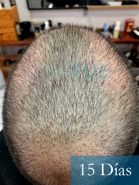 Fran 34 años Murcia trasplante capilar turquia 15 dias despues de la segunda operacion 4