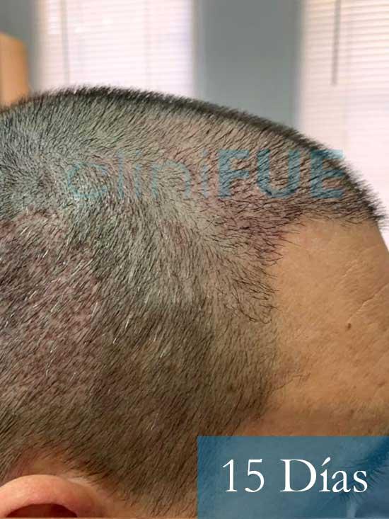 Fran 34 años Murcia trasplante capilar turquia 15 dias despues de la segunda operacion 2