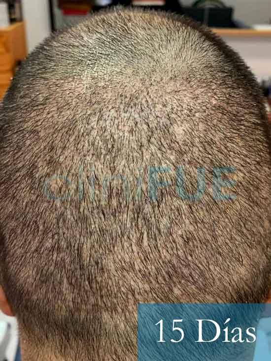 Fran 34 años Murcia trasplante capilar turquia 15 dias despues de la segunda operacion 5