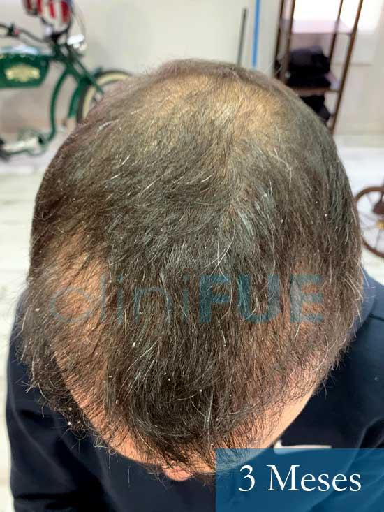 Fran 34 años Murcia trasplante capilar turquia 3 mes despues de la segunda operacion 1