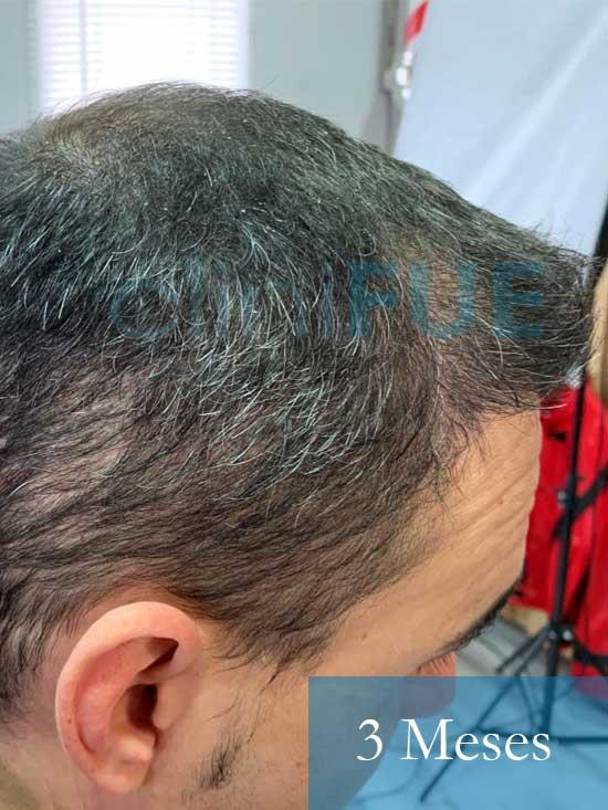 Fran 34 años Murcia trasplante capilar turquia 3 meses despues de la segunda operacion